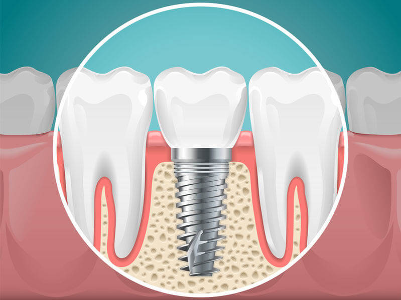 Is It Time to Get Dental Implants?