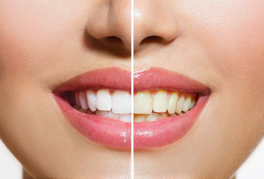 The Zoom Teeth Whitening Process
