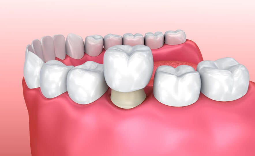 When Are Dental Crowns the Ideal Solution?